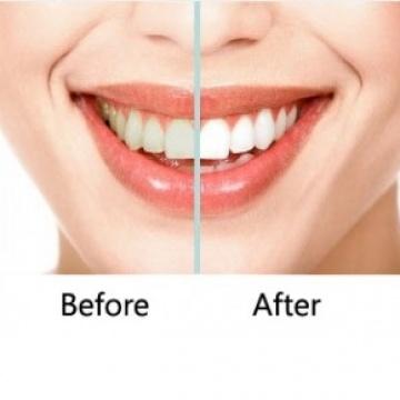 Teeth Whitening Headington Whiter Teeth Oxford Cowley